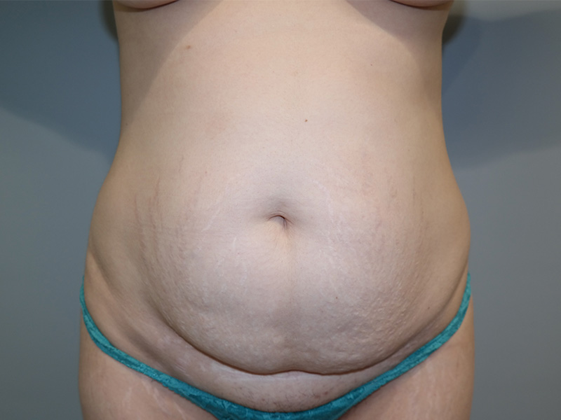 Tummy Tuck Newport Beach