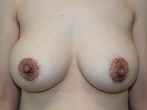 Male Nipple Reduction Newport Beach